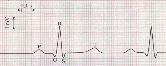 Electrocardiogramme tachychardie